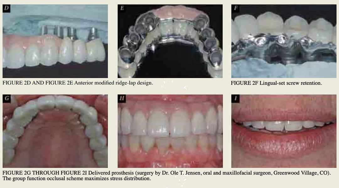 Fixed Restorative Options for the Edentulous Maxilla (White Paper)