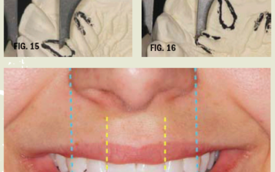 Complete Dentures: Achieving Superior Anterior Esthetics and Post-Delivery Maintenance (White Paper)